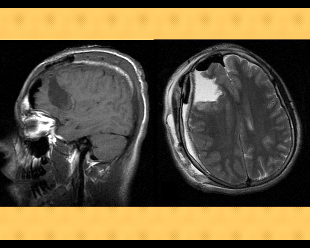 What are some medical causes of seizures?