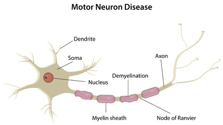 What is a Neurologic Disorder? - Child Neurology Foundation